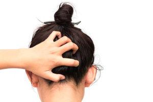 Hair Conditions: Dandruff & Hair Loss